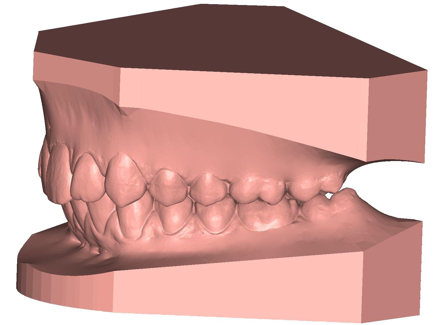 ArchBase base d'étude Modèle 3D dentaire DeltaFace