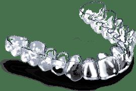 appareil dentaire gouttière transparente Deltaface