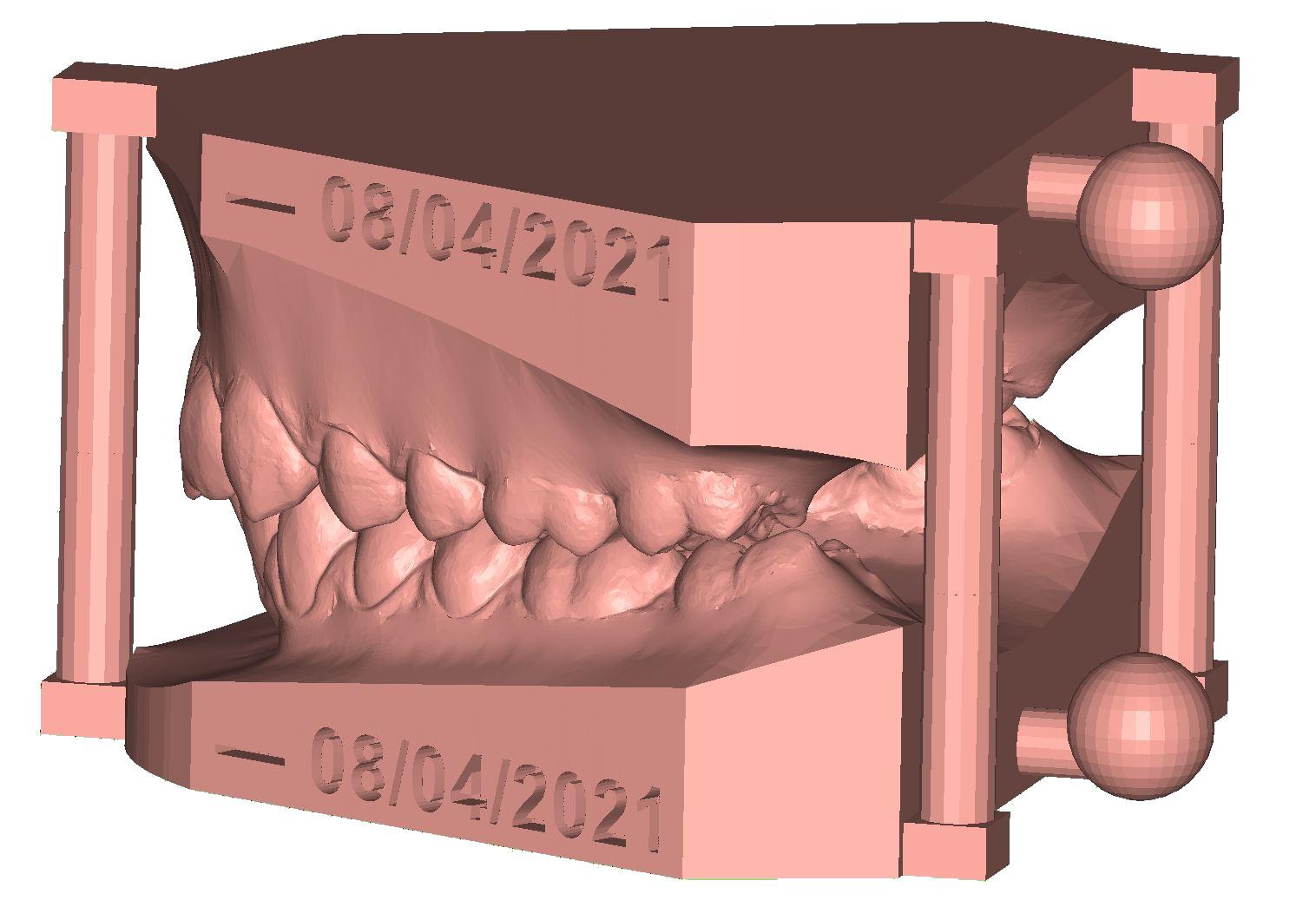 Arch Base soclage des modèle dentaire